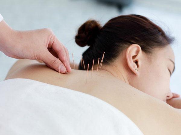 خانمي در تصوير وجود دارد. موهاي مشکي دارد. خوابيده است. تعدادي سوزن داخل کمر او قرار دارد. حوله اي سفيد به تن کرده است.