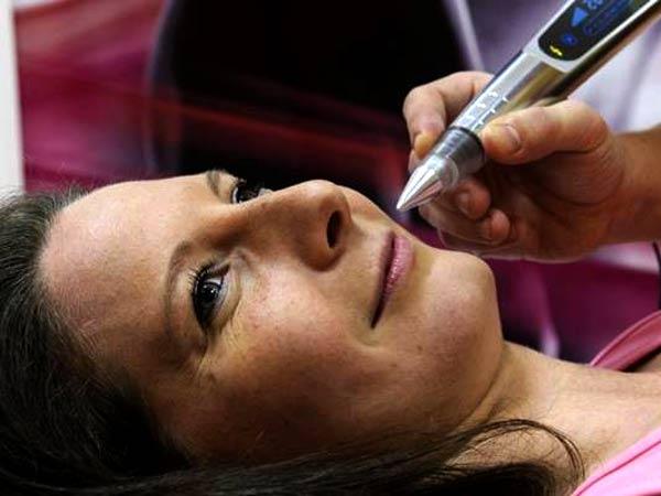 یک خانمی روس تخت دراز کشیده است و دارد لبخند می زند. پزشک دارد از روش پلاسما جت برای جوانسازی صورت او استفاده می کند.در دست پزشک یک قلم پلاسما قرار دارد