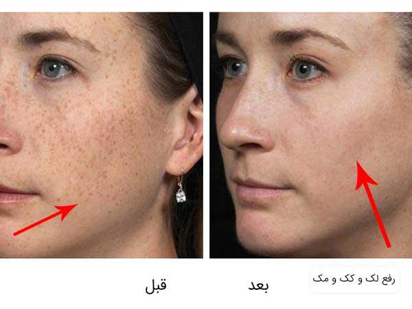تصویر قبل و بعد انجام میکرودرم برای برای درمان لک و کک و مک توسط یک خانم . پس زمینه سفید می باشد