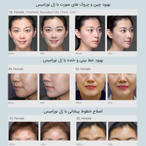تصویر قبل بعد استفاده از ژل نورامیس برای چند خانم و برای نواحی مختلف صورت آنها