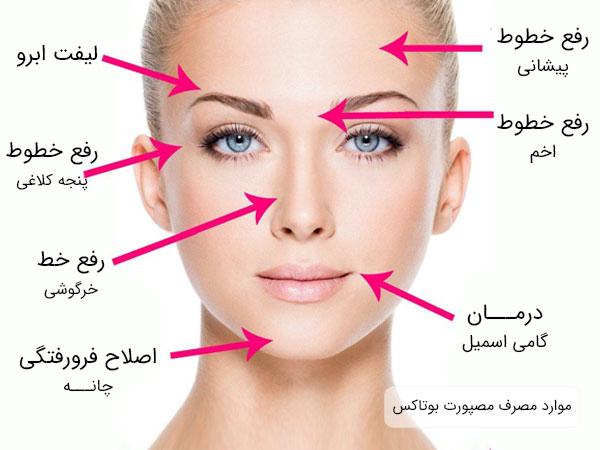نواحی مختلف صورت یک خانم که می تواند با استفاده از مصرف بوتاکس برند مصپورت درمان و رفع شود .