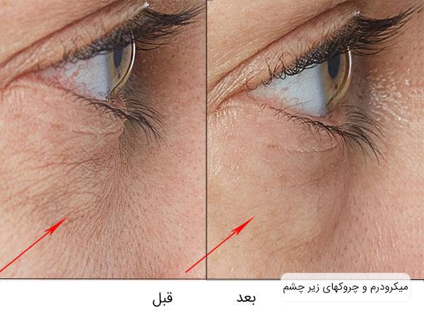 تصویر قبل و بعد استفاده از میکرودرم برای رفع خطوط و چین و چیروک عای زیر چشم