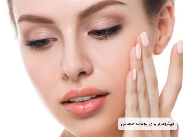 تصویر پوست حساس یک حانم با زمینه سفید که می تواند با استفاده از میکرو درم درمان شود