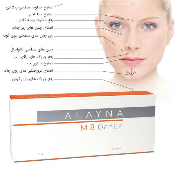 کاربرد ژل آلاینا جنتل در کنار نواحی مورد استفاده این ژل در . صورت یک خانم . زمینه کل تصویر سفید می باشد. قیمت و خرید با این تصویر در ارتباط می باشد