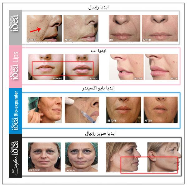 قبل و بعد از استفاده از انواع ژل آیدیا در تصویر کاملا مشهود است