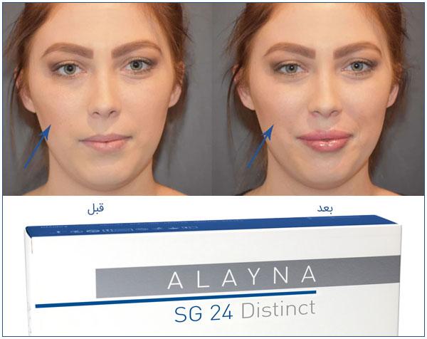 تصویر قبل و بعد از استفاده از ژل اس جی 24 حجم دهنده توسط یک خانم . در پااین تصوصی ژل الاینا اس جی 24 هم نمایان می باشد