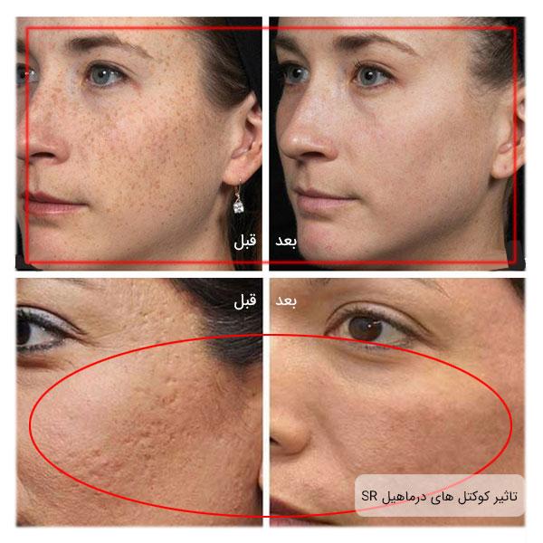 قبل و بعد صورت دو خانم بعد از استفاده از کوکتل های مغذی SR مزو های درماهیل