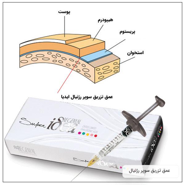 تصویر یک بسته ژل سوپر رژنیال ایدیا به همراه توضیح عمق تزریق آن در پوست و گوشت زیرجلدی محل هدف تزریق .