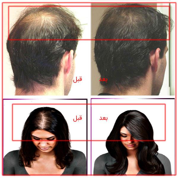 تصویر قبل و بعد از استفاده از کوکتل های مغذی اچ ال برای ترمیم و پرپشت سازی مو.
