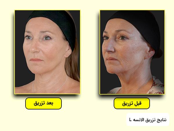 نتايج تزريق فيلر الانسه ال برای رفع جای جوش