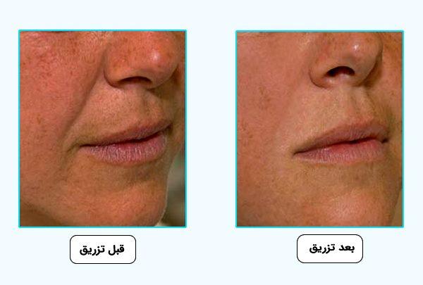 کاربرد ژل مدل اس استايلج براي پوست
