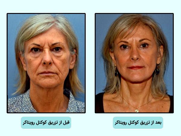 قبل و بعد از استفاده از کوکتل مزوتراپي رويتاکر