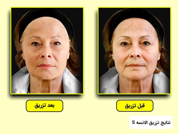 اثرات قبل و بعد از تزريق ژل خط خنده الانسه به پوست صورت مدل اس
