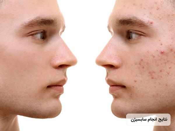نتايج اثرات انجام سابسيژن روي پوست صورت