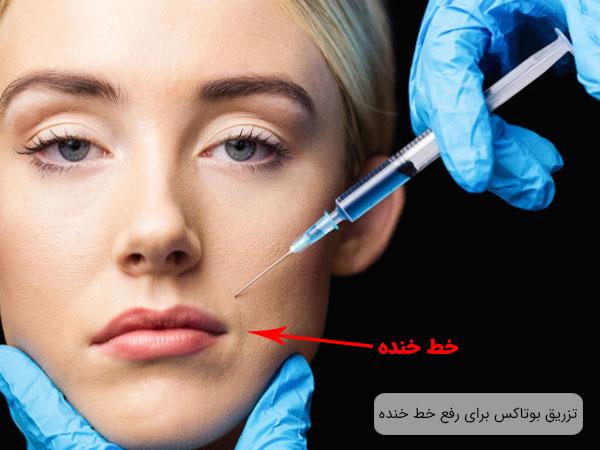 تصویر صورت یک خانم در حال تزریق بوتاکس برای از بین رفتن خط خنده با زمینه مشکی و تیره . سرتگ در تصویر مشخص می باشد