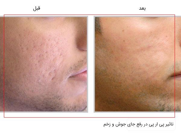 قبل و بعد استفاده از پی ار پی صورت برای رفع جای جوش ، زخم و اسکار در تصویر با زمینه سفید کاملا مشخص می باشد