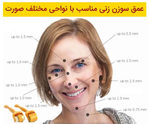تصویر صورت یک خانم که نواحی مورد استفاده برای درمارولر یا دستگاه میکرونیدلینگ دکتررولر در آن به صورت دقیق مشخص شده است