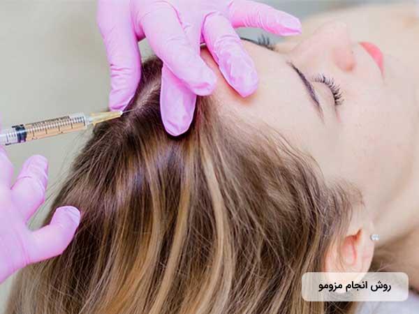 دکتر زيبايي در حال تزريق مواد مزوتراپي به موي سر خانم جوان مي باشد. پزشک دستکش هاي صورتي به دس دارد.