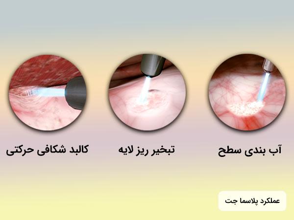 مراحل عملکرد پلاسما جت بر روي پوست