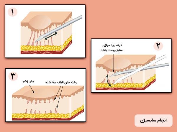 مراحل مکانيزم عملکرد سابسيژن به منظور درمان اسکار جاي جوش