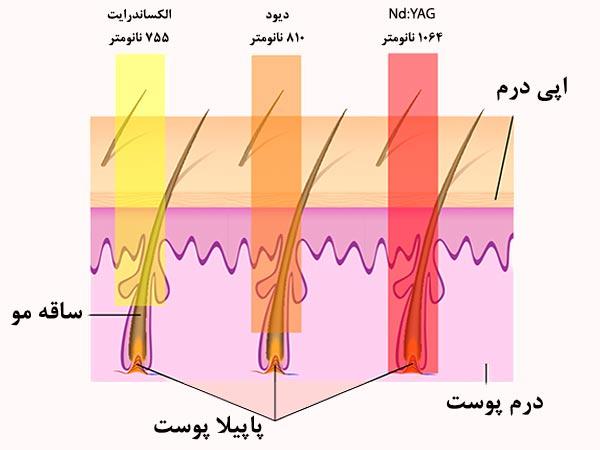 مقايسه طول موج ليزر هاي ديود و الکساندرايت و Nd:YAG