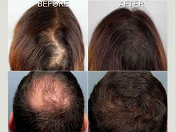 اثرات بعد از انجام مزوتراپي مو
