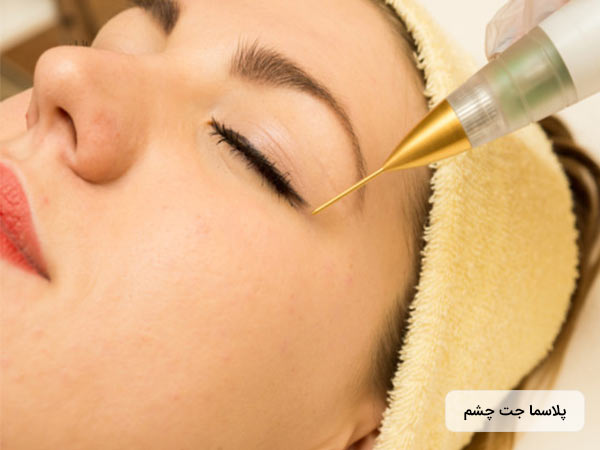 پزشک در حال زيباسازي چشم خانم، با استفاده از پلاسما جت چشم مي باشد.