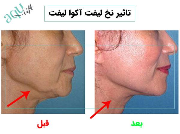 تاثیر استفاده از نخ لیفت آکوالیفت در ناحیه فک و گردن