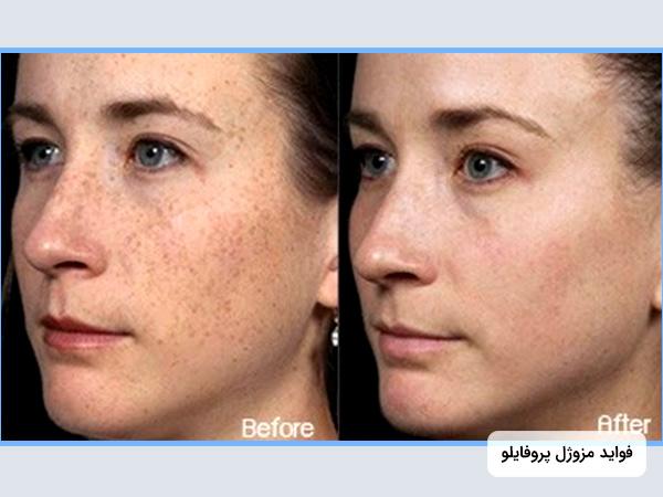 تصویر دو عدد صورت خانم قبل و بعد از تزریق مزوژل پروفايلو