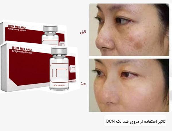 تصاویر صورت قیل و بعد از استفاده از کوکتل BCN MELANO بر روی پوست صورت با زمینه سفید مشخص می باشد.