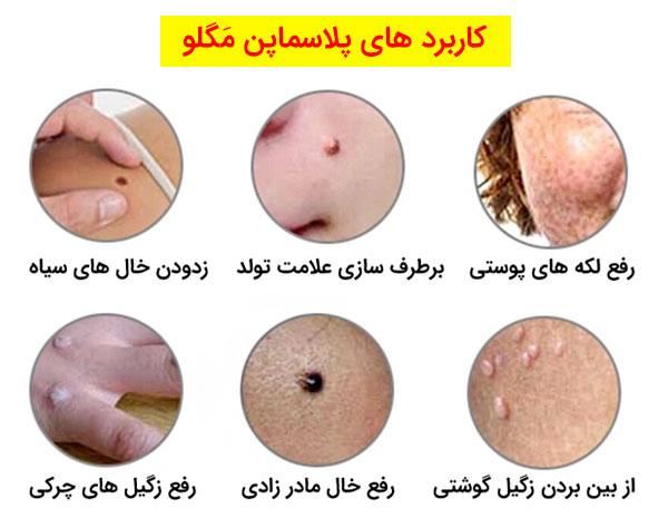 تصویر موارد استفاده از پلاسماپن مگلو در نواحی مختلف صورت و بدن در عکس کاملا مشهود می باشد.