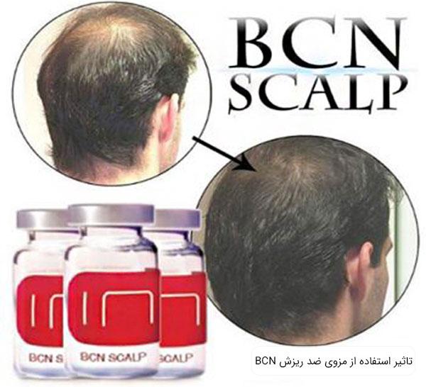 تصویری از موی سر قوی شده یک پسر در کنار ویال مزوی اسکالپ بی سی ان