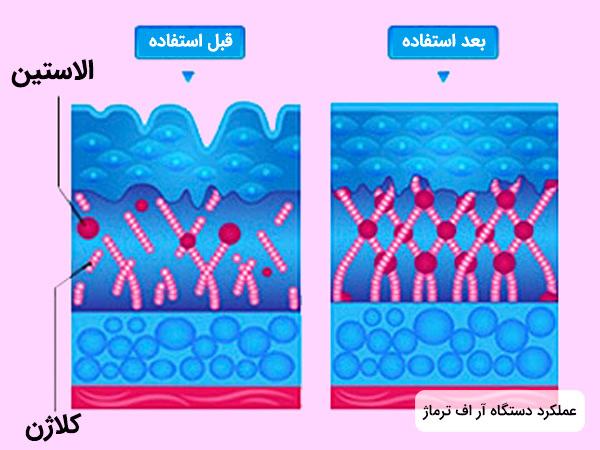 نحوه عملکرد دستگاه آر اف فرکشنال ترماژ در تحریک تولید کلاژن و الاستین پوست