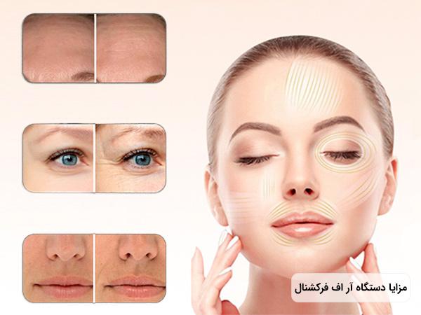 تصویر یک خانم جوان که پوست صاف و روشنی دارد و چشم های خود را بسته است . به همراه کاربرد دستگاه آر اف فرکشنال بر روی پیشانی و چشم و دهان