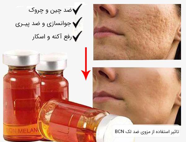 تاثیر استفاده از کوکتل ضد لک ملانو BCN بر روی پوست