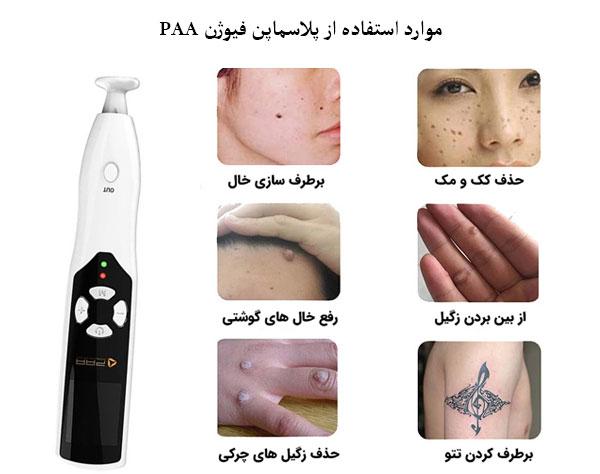 تصویری از کاربردهای متعدد پلاسماپن فیوژن PAA این تصویر با قیمت و نحوه خرید پلاسماپن فیوژن در ارتباط می باشد.