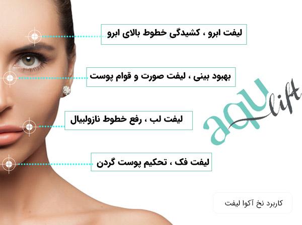 نمایش کاربرد های نخ لیفت آکوا لیفت بر روی صورت یک خانم
