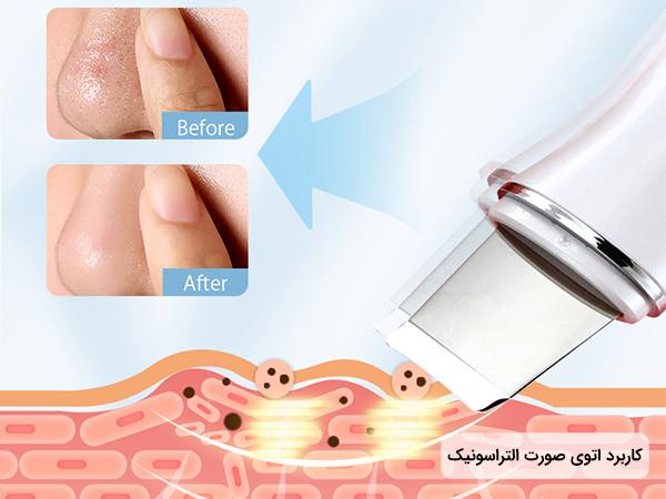 نحوه عملکرد دستگاه اتوي صورت درما اف اولتراسونيک مدل شاول بر روی پوست و قیمت اتوی پوست اولتراسونیک