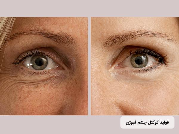 تاثیر کوکتل دور چشم فيوژن اسپانيا F-EYE CONTOUR برای جوانسازی اطراف چشم و صورت