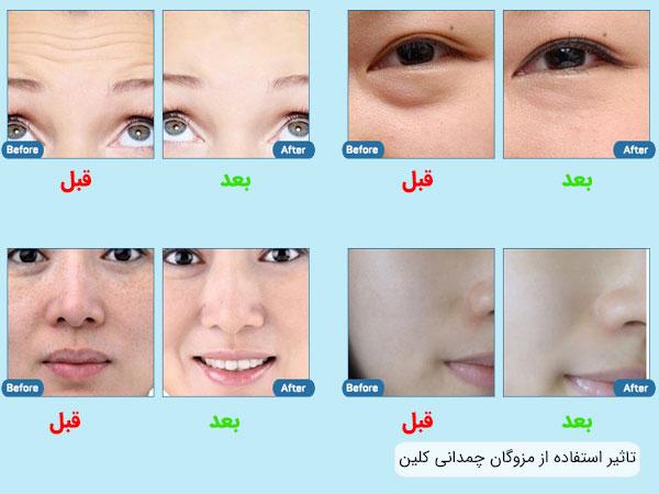 تاثیر استفاده از مزوگان کلینیکی کلین بر روی قسمت های مختلف صورت