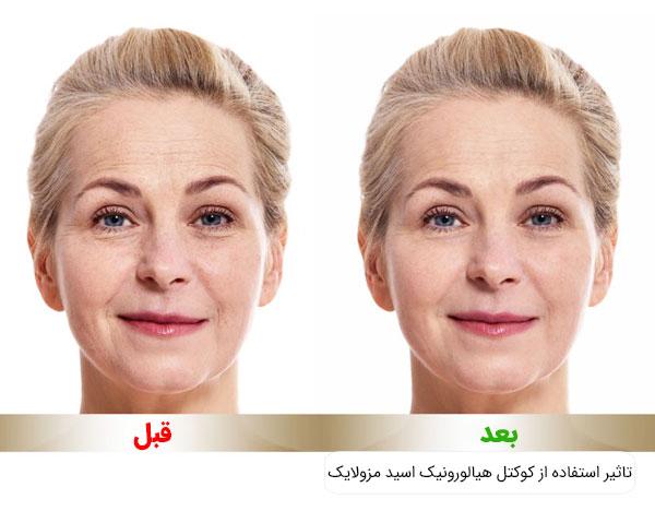 تاثیر استفاده از کوکتل هیالورونیک اسید مزولایک اسپانیا بر روی پوست صورت