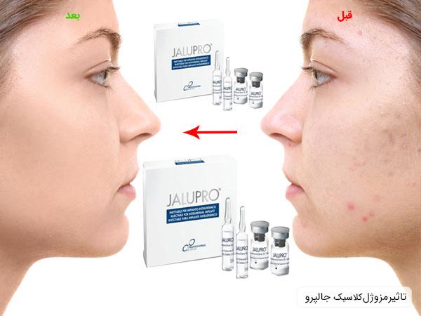 تاثیر استفاده از مزوژل جالپرو کلاسیک بر روی پوست صورت