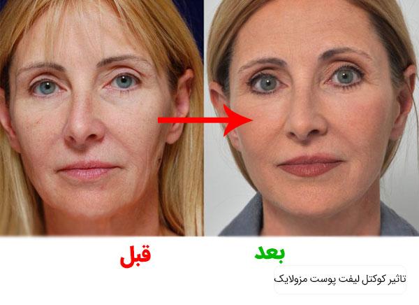 تصویری از قبل و بعد از استفاده از کوکتل لیفت مزولایک