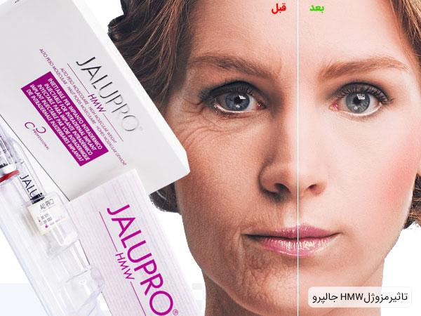 تاثیر استفاده از مزوژل جالپرو HMW بر روی پوست صورت