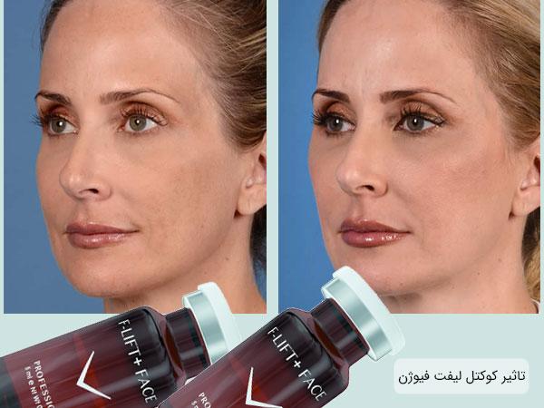 قبل و بعد از استفاده از کوکتل لیفت فیوژن
