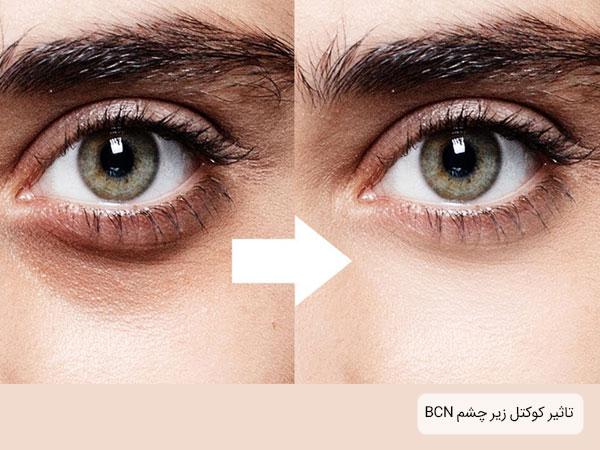 قبل و بعد از استفاده از کوکتل زیر چشم bcn به همراه قیمت کوکتل زیر چشم بی سی ان